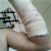 my accident